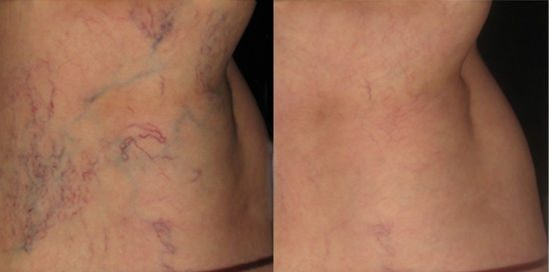 3 Top Reasons Your Veins Came Back After Sclerotherapy